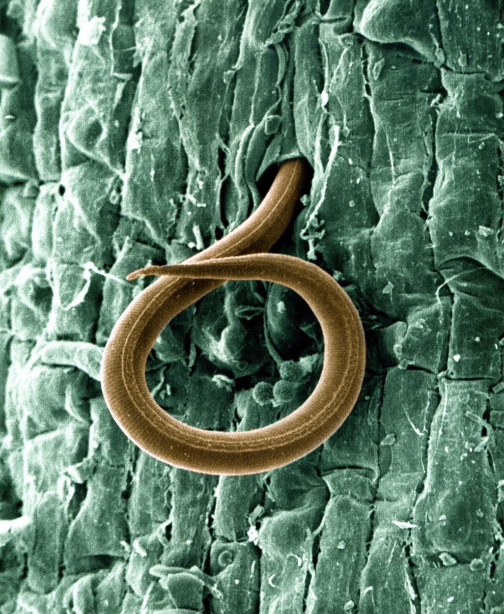Nematoda Nematodes Roundworms Animalia